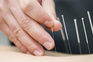 550_akupunktur